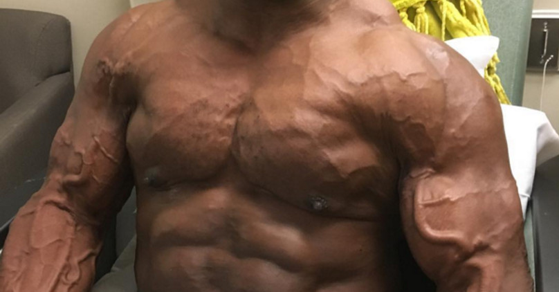 YEAH BUDDY Road to Recovery 8x Mr Olympia